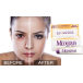 Kem Trị Sẹo Mederma Scar Cream Plus SPF 30